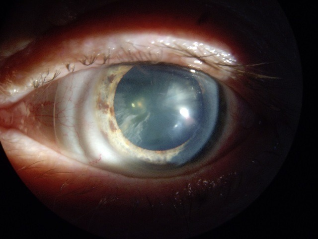 что такое катаракта глаза простыми словами